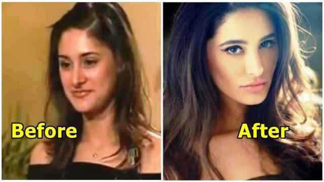 Nargis Fakhri before and after