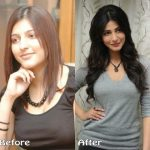 Shruti Haasan before and after