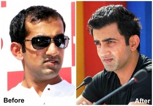 Gautam Gambhir before and after hair transplant