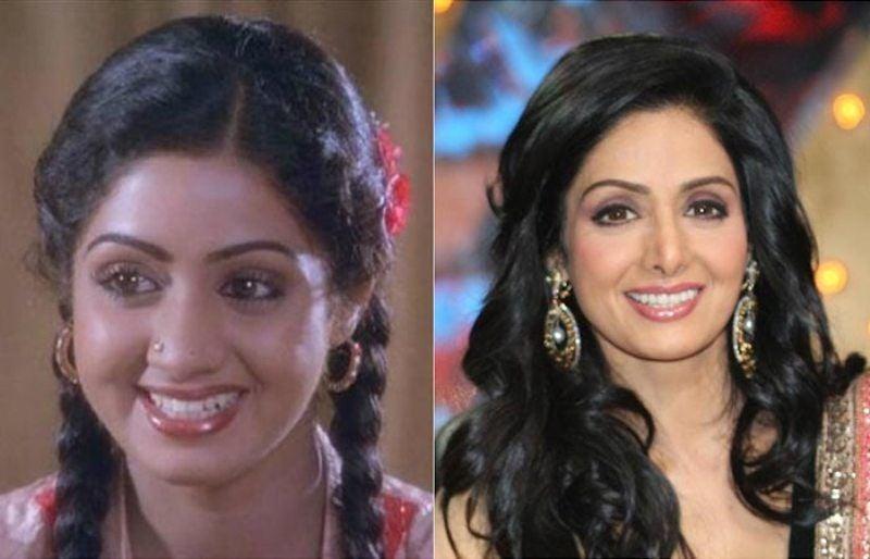Sridevi Plastic Surgery