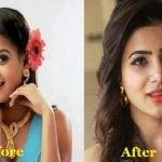 Samantha Ruth Prabhu nose job