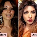 Shama Sikander Before & After Picture