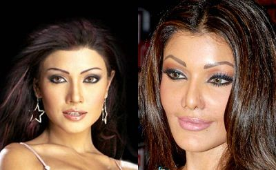 Koena Mitra before and after platic surgery