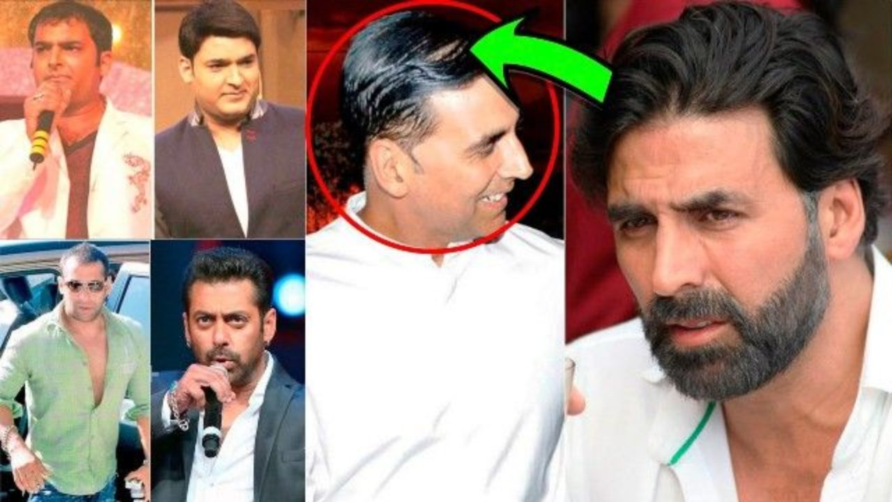 Bollywood Celebrities Who Underwent Hair Transplant Starsunfolded