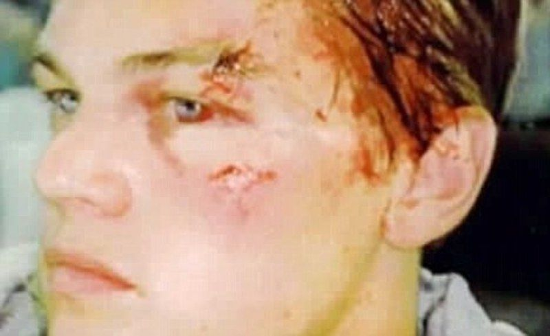 Leonardo DiCaprio's Injured Face After Being Attacked by Wilson